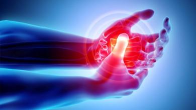 Photo of دور العلاج الطبيعي في التخفيف من أعراض مرض التهاب المفاصل «الروماتويدي»